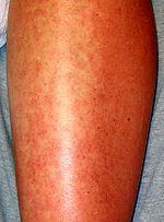 Allergic urticaria on the shin induced by an antibiotic