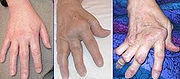 Hands affected by RA