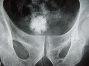 Star shaped bladder urolith on an X-ray of the pelvis.