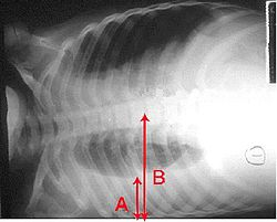 Pleural effusion. Chest x-ray showing a pleural effusion. The A arrow indicates